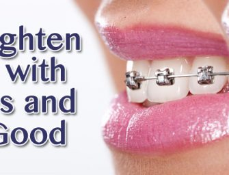 Top 10 Things To Consider When Choosing Your Orthodontic Braces Treatment in Las Vegas