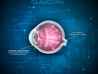 Natural Therapies for Glaucoma