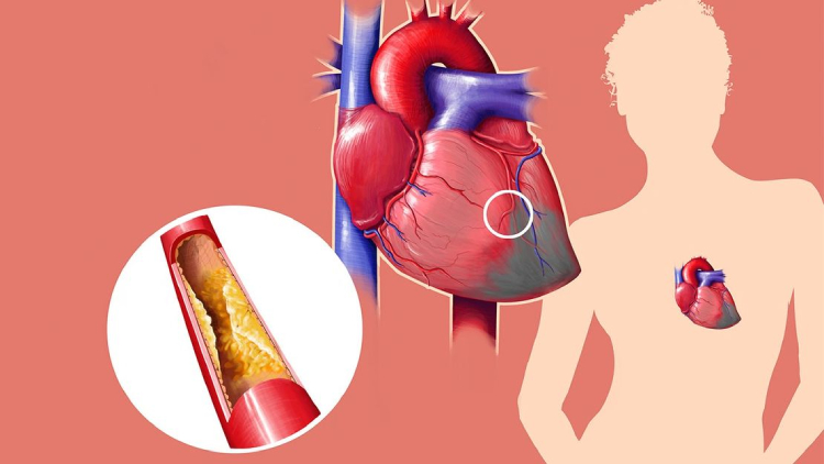What Are the Symptoms of Cholesterol Problems?